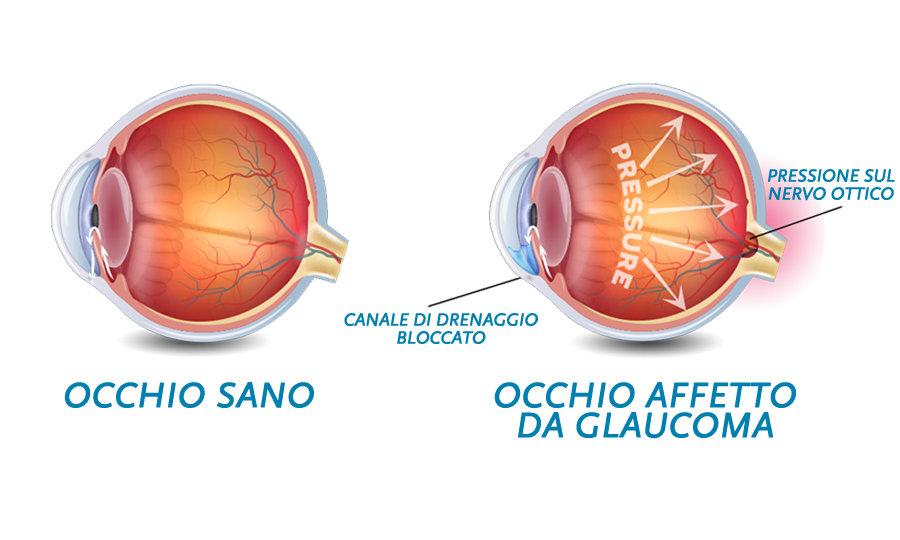 glaucomaFB